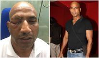 Disturbing! Actor Jeetu Verma attacked in Chittorgarh, might lose an eye