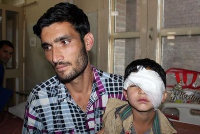 CRPF sorry for pellet injuries in Kashmir