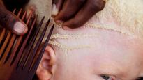 Albinos killed for witchcraft in Malawi face 'extinction,' UN expert warns