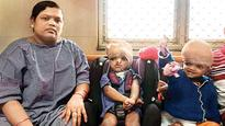 AIIMS tell NHRC that separated twins do not need specialised care anymore
