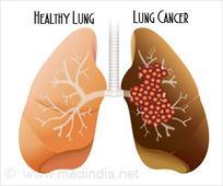 FDA Approves Brigatinib Drug For ALK-Positive Lung Cancer Treatment