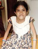 Help needed: With surgery, Dikshita can eat food