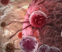 Combination Therapy Effective Against Ovarian, Breast Cancer