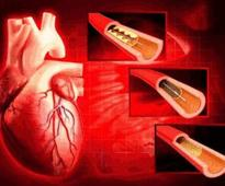 NPPA moves to devise mechanism for capping the prices of stents
