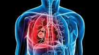 A kind word: How counselling has helped TB patients cope