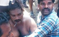 Biker, whose neck was pierced by iron rod in Puducherry, rescued in Andhra's Kakinada