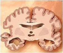 Physical Progression of Alzheimer's May Differ Between Men and Women
