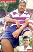 Dalit youth paralysed in brutal attack by 17 men awaits justice