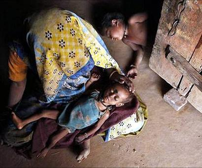 NHRC notice to MP government over death of 116 children due to malnutrition