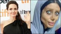 Teen undergoes whopping 50 surgeries to look like Angelina Jolie