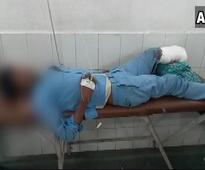 Man's severed leg used as 'pillow' in UP govt hospital, 4 suspended