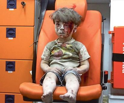 Brother of Syrian boy, pictured bloodied after air strike, dies