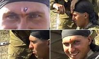 Russian soldier shot in the head by an AK-47 smiles for the camera as his comrade pulls it out using just PLIERS  | Mail Online