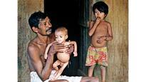 14% anganwadi kids anaemic: AMC survey