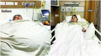 Eman Ahmed stable after first surgery