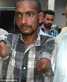 Pakistani Christian Mans Hands Allegedly Chopped Off Because He Refused To Convert To Islam