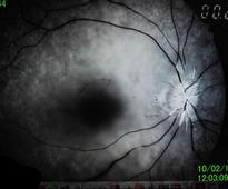 Woman Goes Blind in One Eye After Playing Mobile Video Game Almost Non-Stop