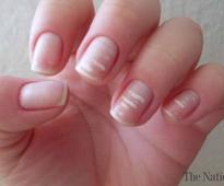 The actual reason of those white marks on our nails isn't ...