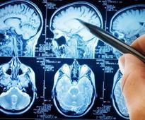 College graduates at higher risk of cancerous brain tumours, researchers find