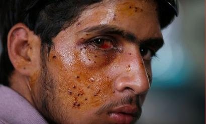 No blanket ban on pellet guns, but to be used in rare cases