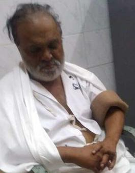 Court holds hospital dean guilty of contempt over Bhujbal's stay