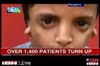 Mangalore: Hospital gives free surgeries to fix facial deformities