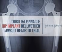 Third J&J Pinnacle Hip Implant Bellwether Lawsuit Heads to Trial