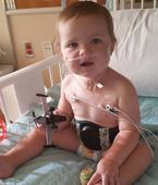 Toddler almost dies after swallowing tiny battery which burned a HOLE in his gullet