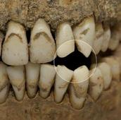 Dig explores mysterious mass graves from 17th century