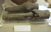 Researchers Confident Mysterious Pair Of Mummified Knees Belonged To Queen Nefertari