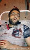 Top Hizb Commander Burhan Wani among three militants killed in Kokernag