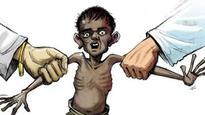 New guideline for severely malnourished children
