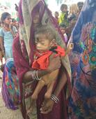 Malnutrition kills 70 kids in MPs Sheopur. How about a surgical strike?