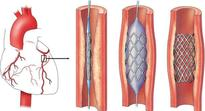 Price cut of stents: manufacturers make attempts to scuttle move