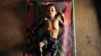 Bombay High Court pulls up state for failing to curb malnutrition deaths of tribals