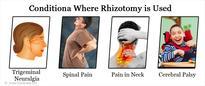 Rhizotomy