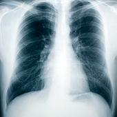 Early Screening for COPD