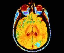 Higher NT-proBNP Tied to Lower Brain Volume in Older Adults