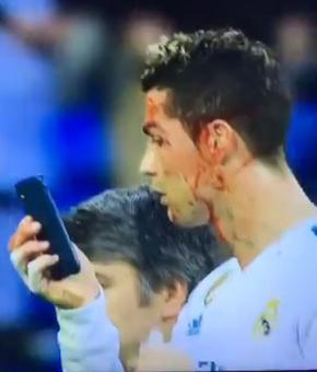 Ronaldo's 'mirror' act invites jokes and sympathy on Twitter