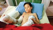 As Diwali gift, 10-yr-old Nepal resident gets his fingers back