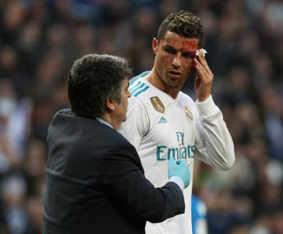 La Liga: Bloodied Ronaldo scores twice in Real Madrid rout