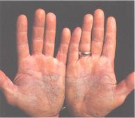 Santalis starts enrolment in Phase ll trial of EISO to treat mild to moderate plaque psoriasis