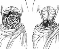 The Horrifying Legacy of the Victorian Tapeworm Diet