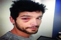 Is that Diganth with a blood-shot eye?