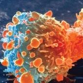 Cancer Institute Gets Pittance