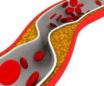 Higher HDL-C Linked to Cardiac Risk With LDL-C <2.0 mmol/L