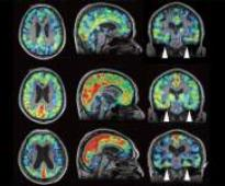 One step closer to in-vivo CTE diagnosis
