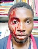 Attack on Nigerian youth: MEA seeks report from Telangana