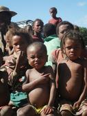 Malagasy Children Bear Brunt of Severe Drought