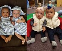 These Adorable Twins Were Born With Two Different Skin Colors